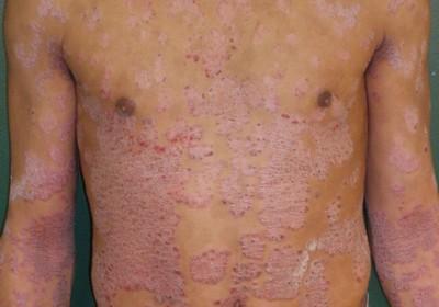 Le psoriasis sur la peau de la tête quest-ce que cest
