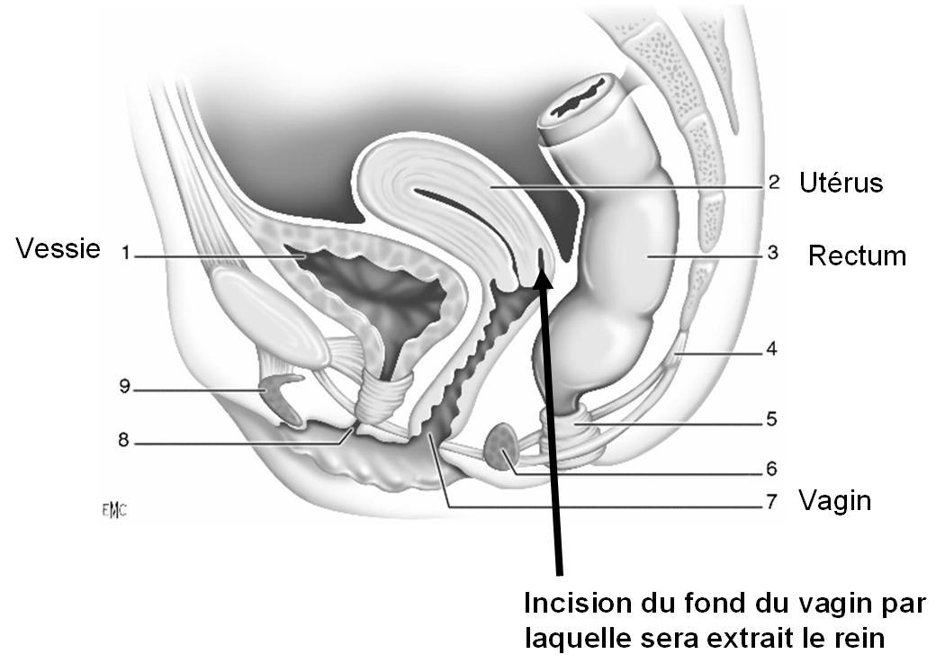 R seau chu extraction d 39 un rein par le vagin une 1 re for L interieur du vagin